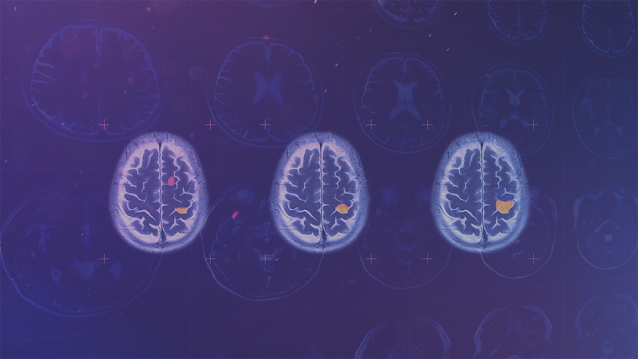 SOPHiA brain mapping using AI